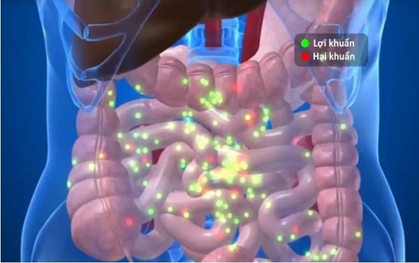7 thói quen gây hại cho hệ vi khuẩn đường ruột bạn nên tránh
